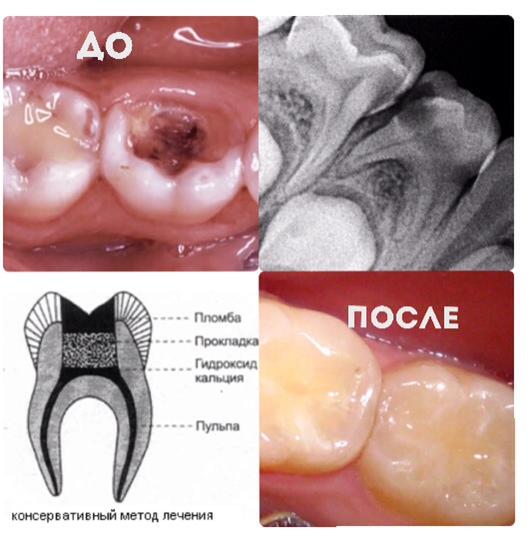 Лечение периодонтита постоянных и молочных зубов