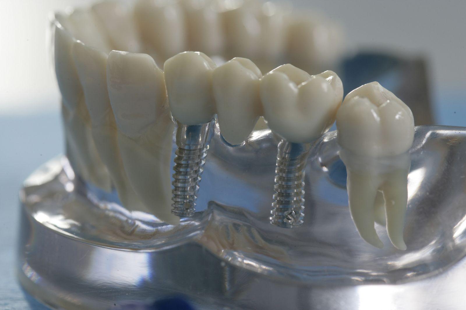 Имплантация зубов хирургическая часть