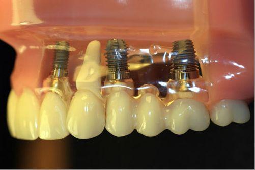 Сколько служит имплант зуба и через какой срок может потребоваться его замена