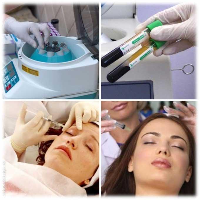 Плазмолифтинг в стоматологии: что это такое