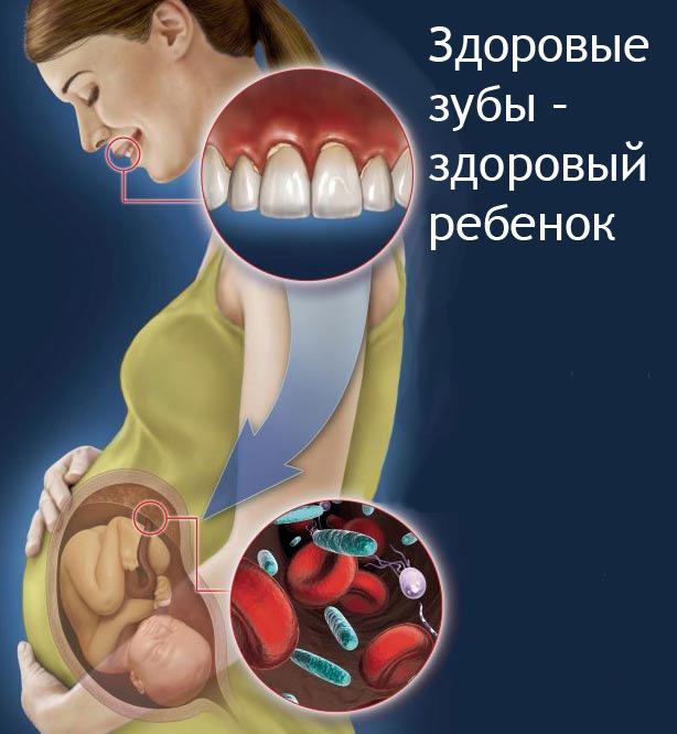 Беременность 3 триместр лечение орви