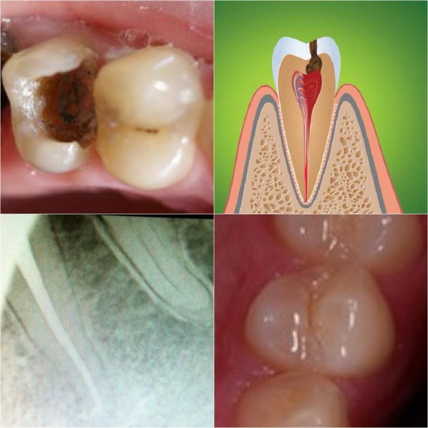 Молочный зуб с флюсом что делать 3
