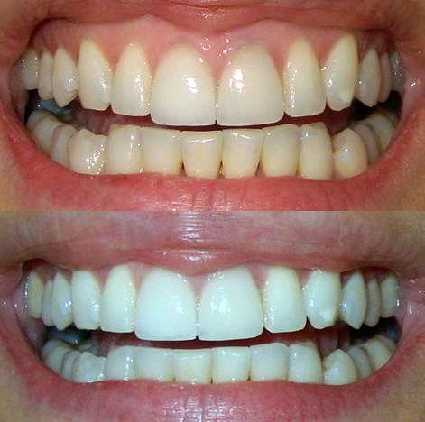 отбеливание зубов в пушкино