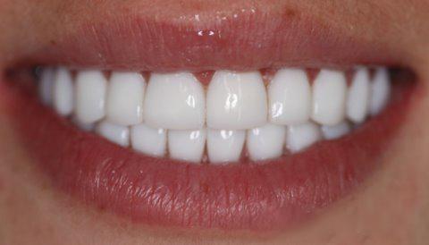 Люминиры на зубы цена екатеринбург