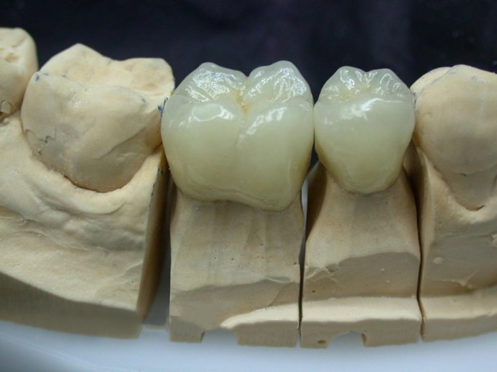 виниры пластинки на зубы