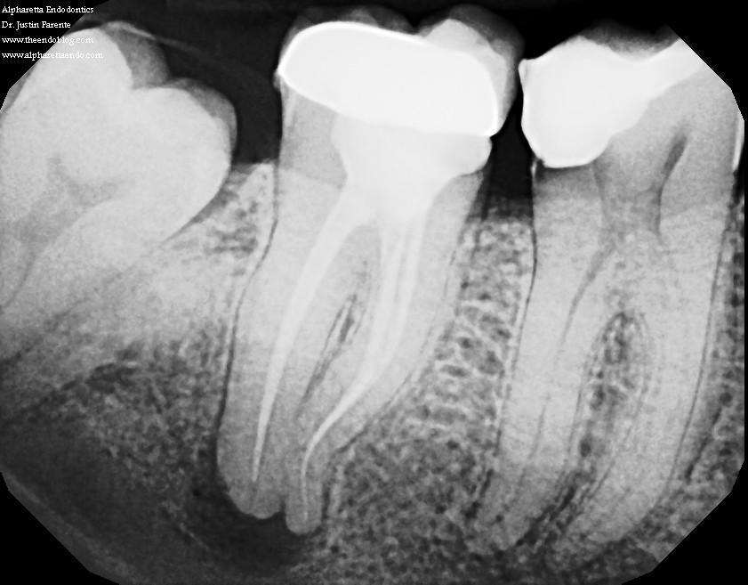 Как лечить боль в десне после удаления зуба